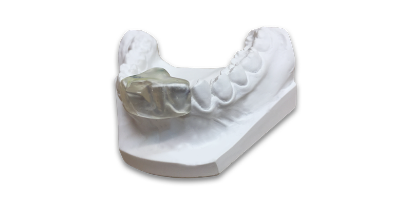 TMD and Bruxism Treatments at Quinlivan Dental Clinic Kanturk